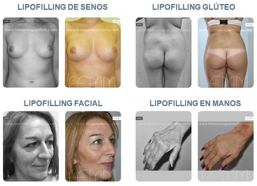 Diez cuestiones sobre lipofilling