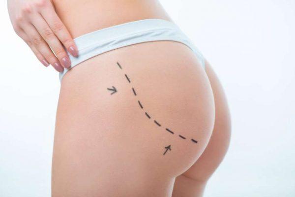 Las ventajas de la liposucción convencional