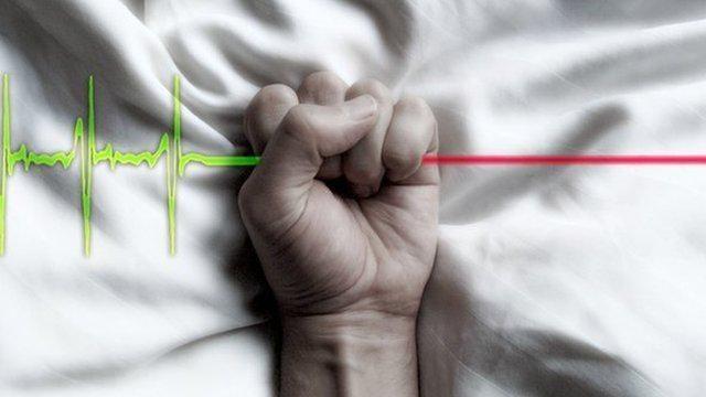 Las eutanasias varias de nuestro país